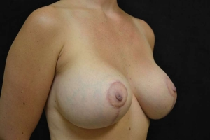 breast lift after photo side view 2