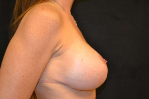 breast lift after photo side view 4