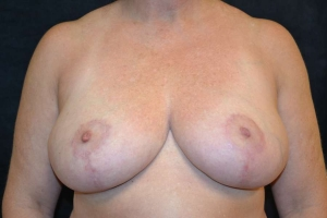 breast reduction after photo front view 1