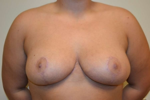 breast reduction after photo front view 3